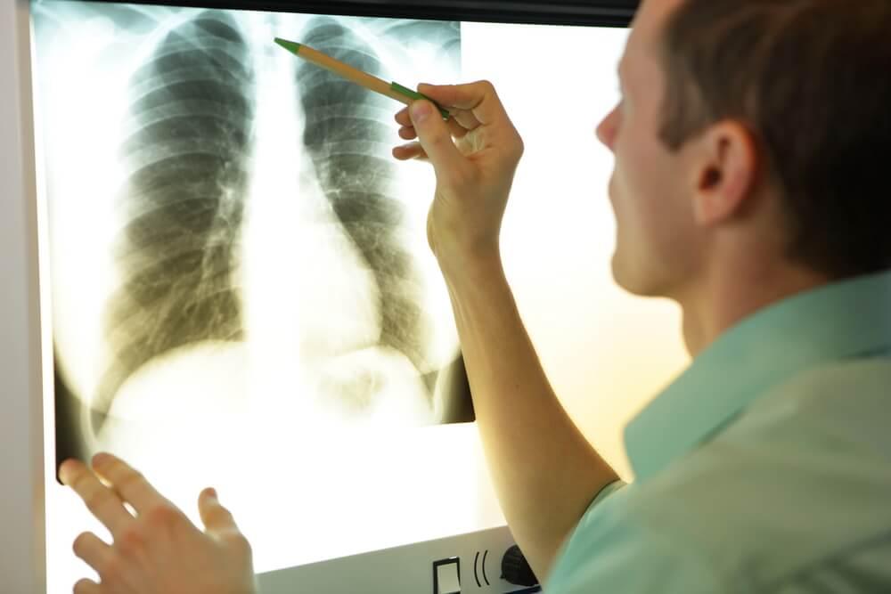 Workplace asthma