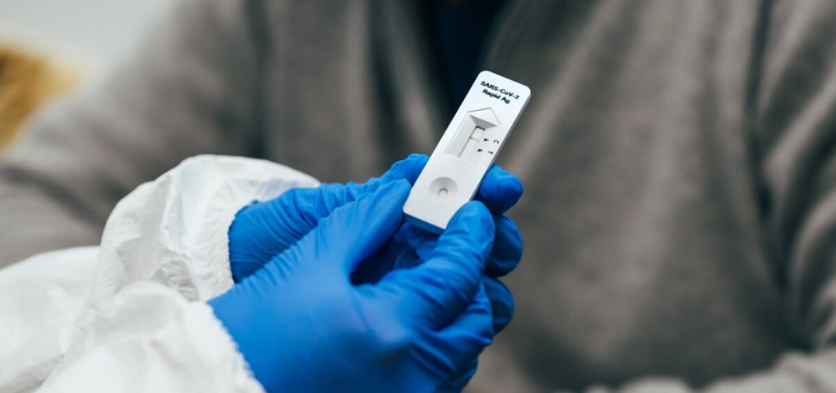 Government Urged to Provide Free Rapid COVID Testing